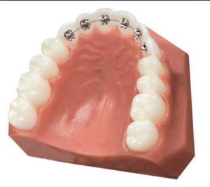 aparelho dental interno